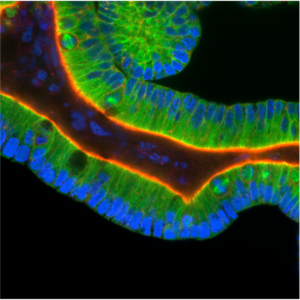 Intestinal stem cells grown in three-dimensional culture conditions develop into organoids, tissue-like structures with features of intestinal crypts. This organoid has been stained for tubulin (green), DNA (blue), and actin (red). Several dividing cells, two with easily-identified mitotic spindles, are evident.